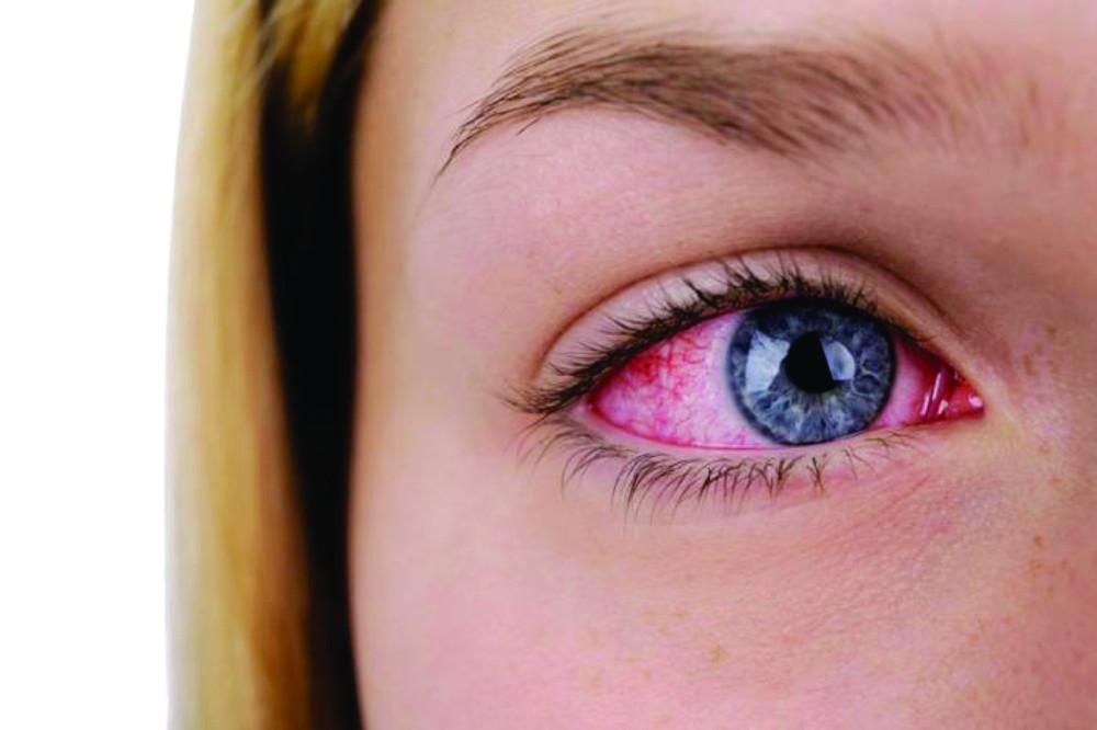 What is Meibomian Gland Dysfunction (MGD)?